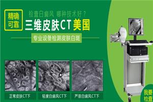 使用皮肤CT检查白癞风需要多少费用?